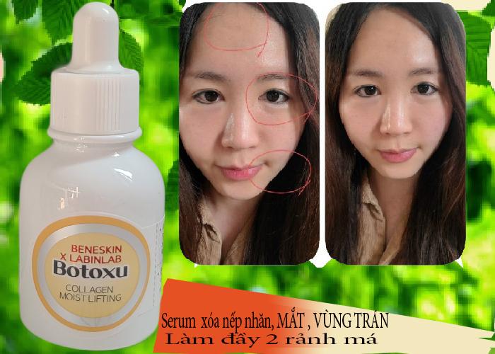 Serum collagen xóa nếp nhăn vùng mắt chống lão hóa